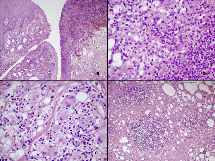 Treatment and Outcome of Vaseline-Induced Sclerosing Lipogranuloma