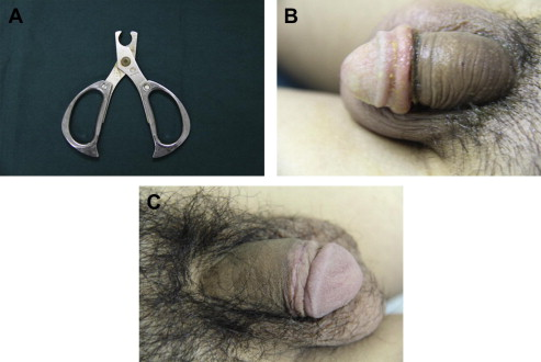 Are similar Adult circumcision frenulum