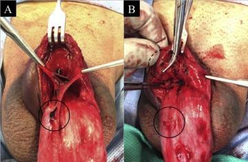 ruptured venen i penis
