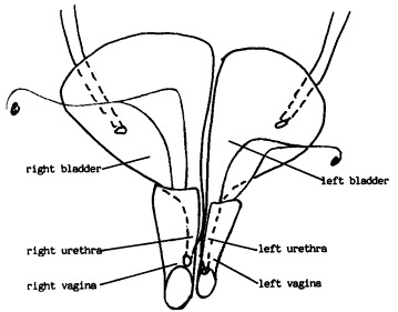 plete duplication of the bladder urethra vagina and uterus in Hot Men Average Body download full size image