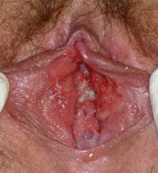 Hpv of the vulva