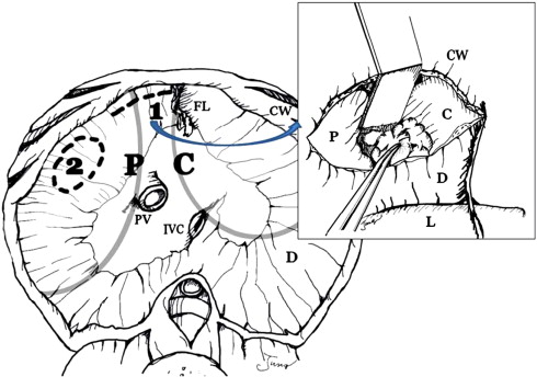 Transabdominal Cardiophrenic Lymph Node Dissection Cplnd Via Incised Diaphragm Replace Conventional Video Assisted Thoracic Surgery For Cytoreductive Surgery In Advanced Ovarian Cancer Sciencedirect