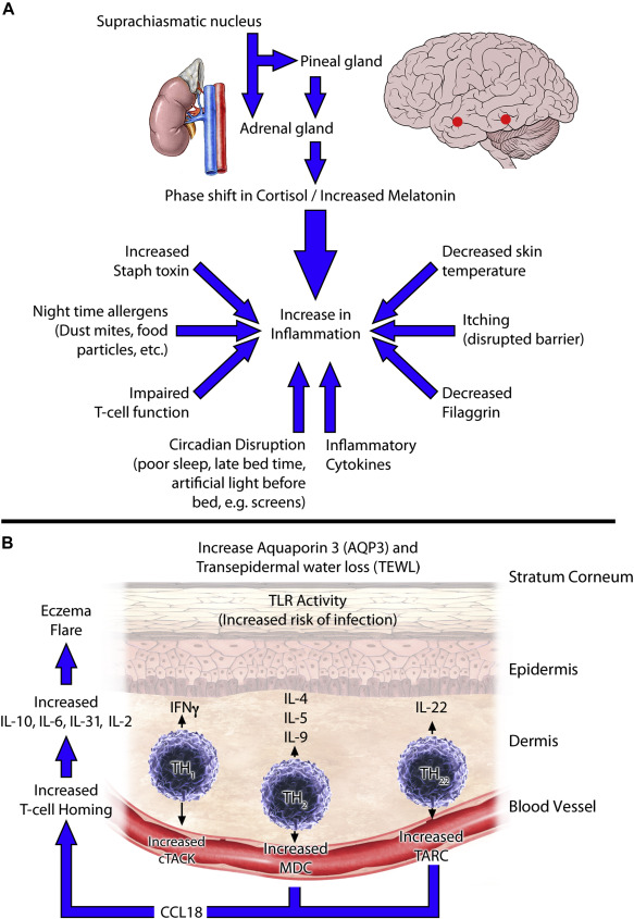 Nocturnal eczema: Review of sleep and circadian rhythms in