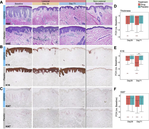 GBR 830, an anti-OX40, improves skin gene signatures and