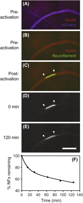 Live-cell imaging of neurofilament transport in cultured