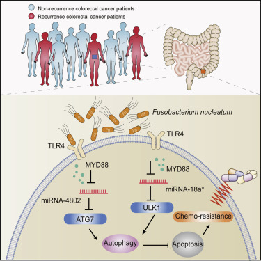 Fusobacterium Nucleatum Promotes Chemoresistance To Colorectal Cancer By Modulating Autophagy Sciencedirect