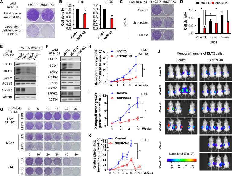 Post-transcriptional Regulation of De Novo Lipogenesis by