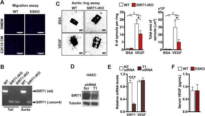 Impairment of an Endothelial NAD+-H2S Signaling Network Is a