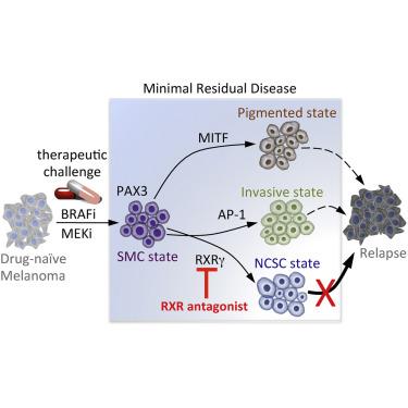 Toward Minimal Residual Disease-Directed Therapy in Melanoma