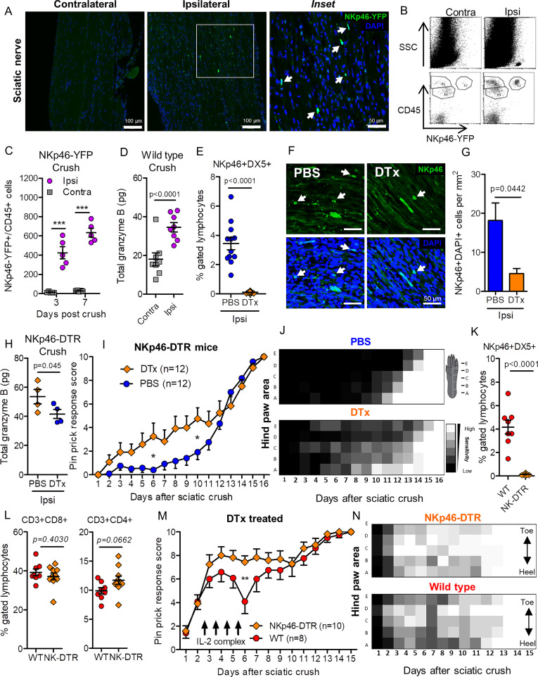 Natural Killer Cells Degenerate Intact Sensory Afferents following