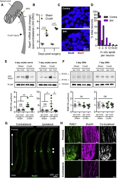Natural Killer Cells Degenerate Intact Sensory Afferents following