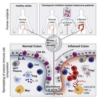 Cancer colon immunotherapy, NCLEX-RN: Oncology Nursing - Brilliant Nurse®