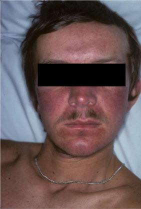 neuroendocrine cancer of the skin)