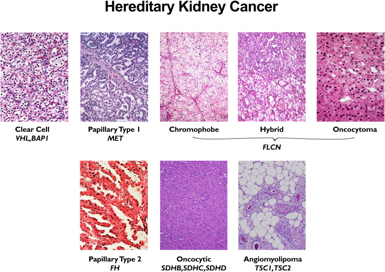 Genetic Predisposition To Kidney Cancer Sciencedirect