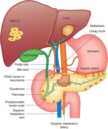 metastatic cancer and pancreatic