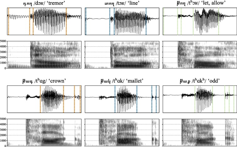 Plosive voicing acoustics and voice quality in Yerevan Armenian
