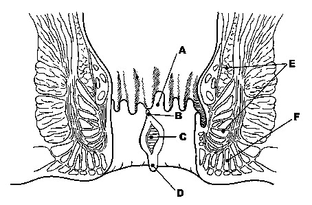 ANORECTAL PAIN AND IRRITATION: Anal Fissure, Levator