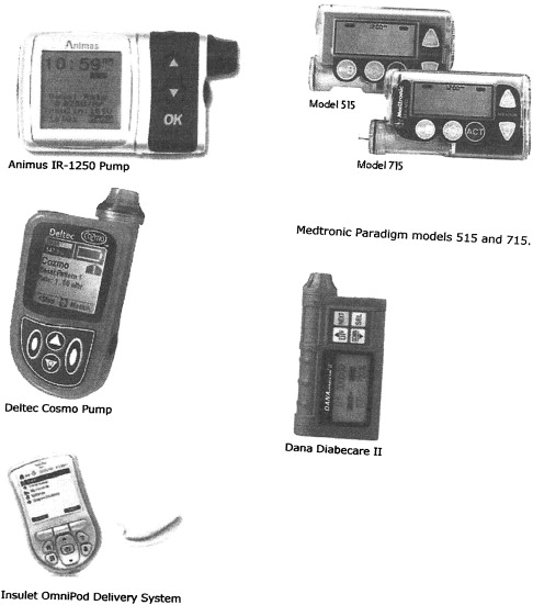 Insulin Pump Therapy (Continuous Subcutaneous Insulin