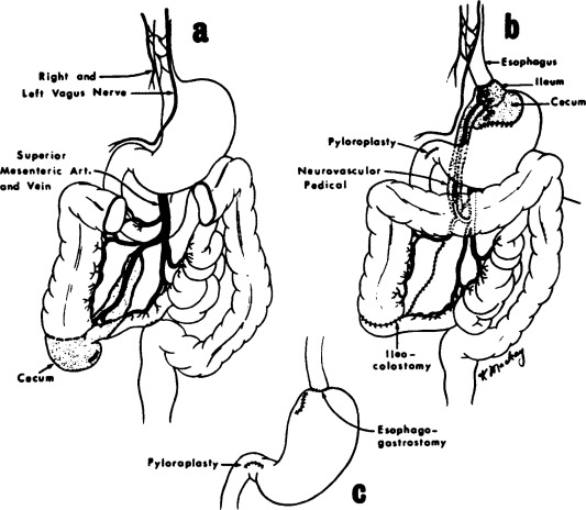 Replacement Of The Cardioesophageal Sphincter With The Ileocecal
