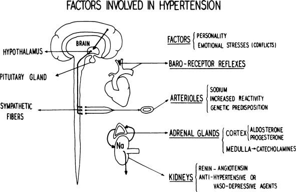 Hta maligne etiología de la hipertensión