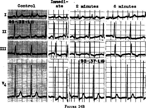 Exercise Electrocardiography as an Estimation of Cardiac Function ...