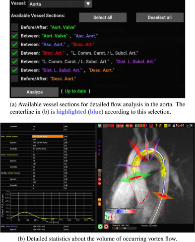 Bloodline: A system for the guided analysis of cardiac 4D PC