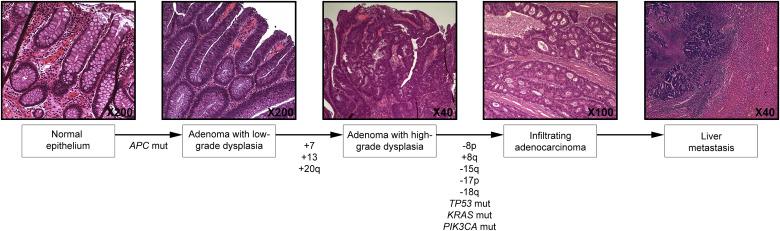 adenoma de próstata universal