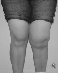 sintomas de lipoma na coxa