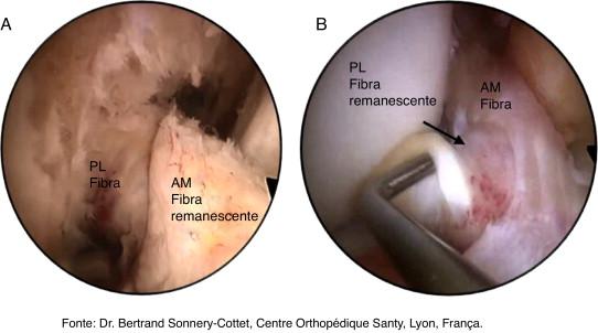 rotura de ligamentos joelho tratamento