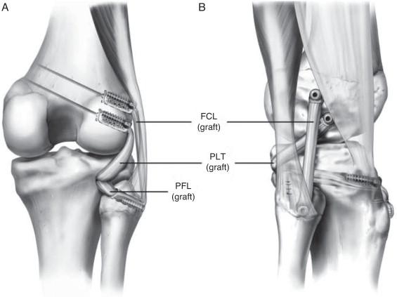 Lesões do canto posterolateral do joelho: uma revisão completa da ...