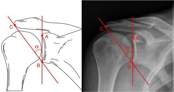 Esquema da mensuração do ângulo crítico do ombro (ACO)