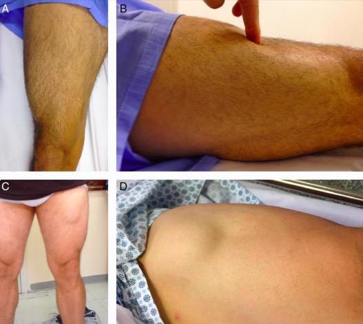 dor na parte superior da perna por fisioterapia nos músculos e tendões