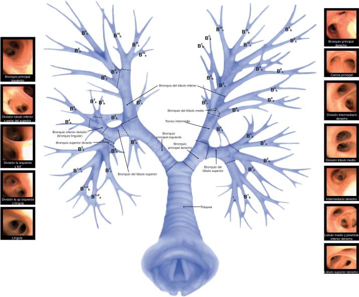 Anatomía de la vía aérea para el broncoscopista. Una aproximación a ...