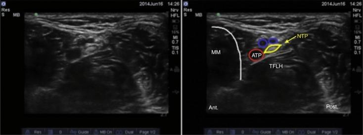 Bloqueo de tobillo guiado por ultrasonido: una técnica anestésica ...