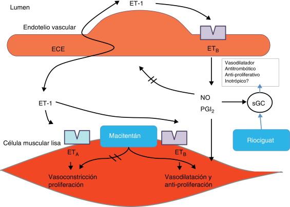 Hipertensión endotelina 1