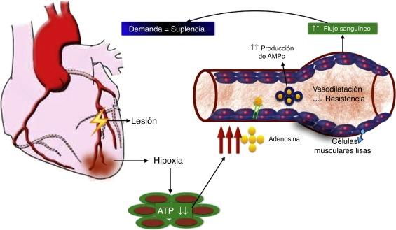 Definición de falla de enfermedad de la arteria coronaria