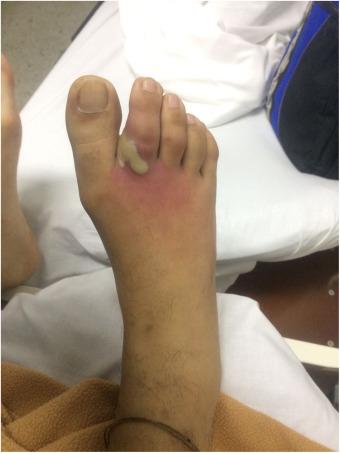 dorsiflexión deformidad del pie diabetes