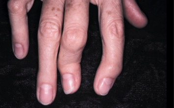 fluocinonide for nail psoriasis