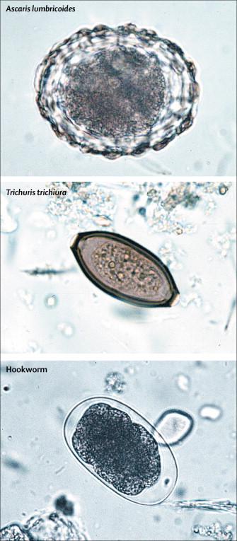 pinworm utóhatása vermox adagolása gyerekeknek