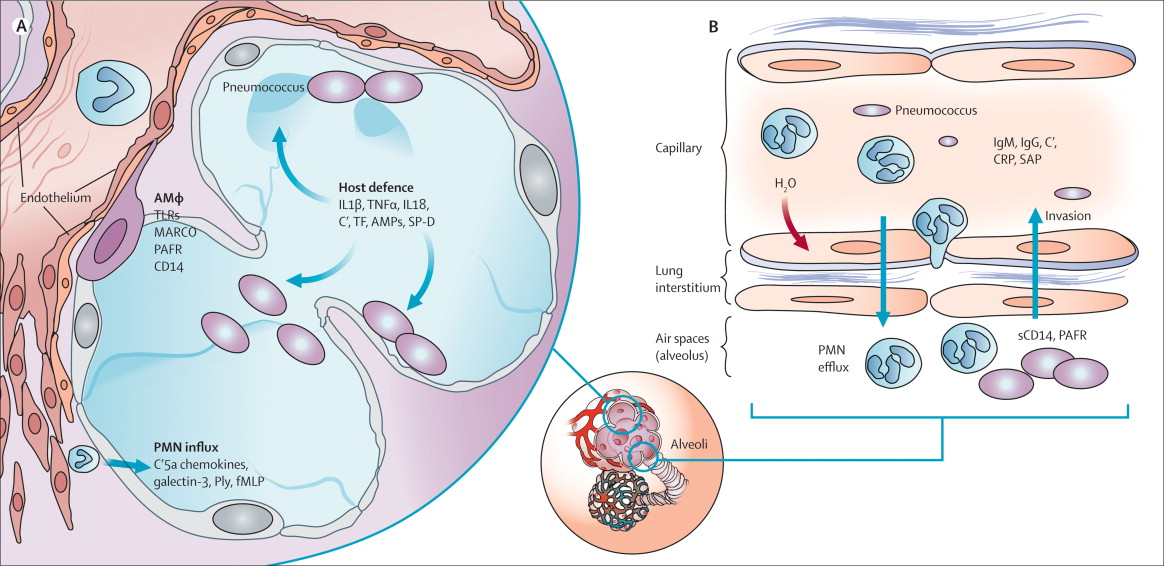 Pathogenesis, treatment, and prevention of pneumococcal pneumonia ...