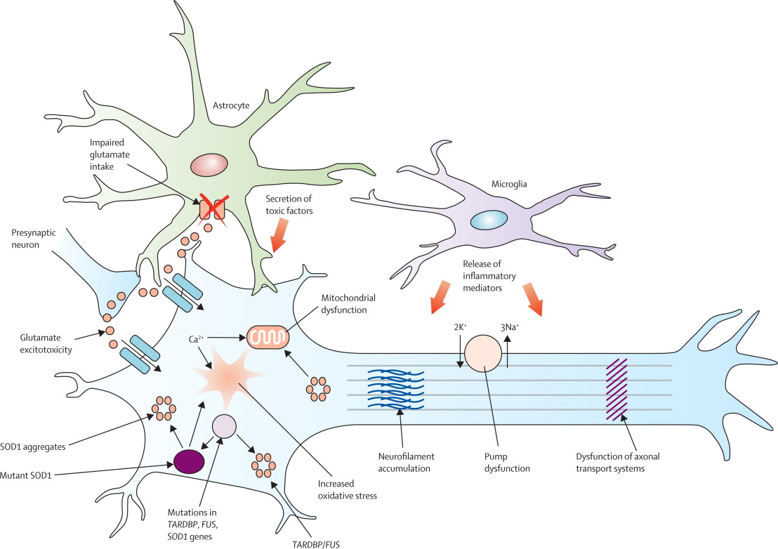 amyotrophic lateral sclerosis - sciencedirect