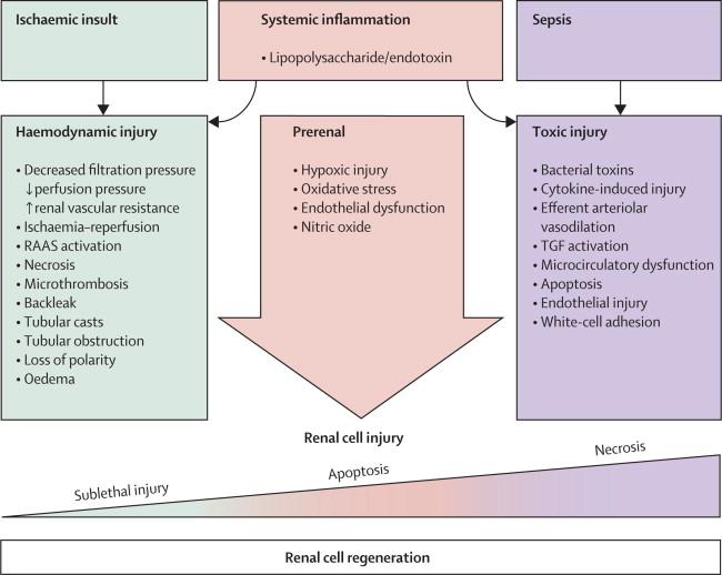 Acute Kidney Injury Sciencedirect