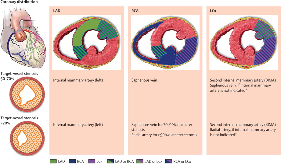 Stable coronary artery disease: revascularisation and invasive ...
