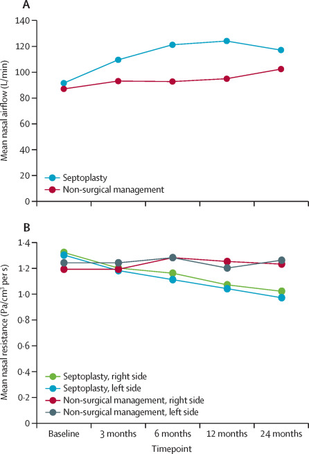 Septoplasty with or without concurrent turbinate surgery