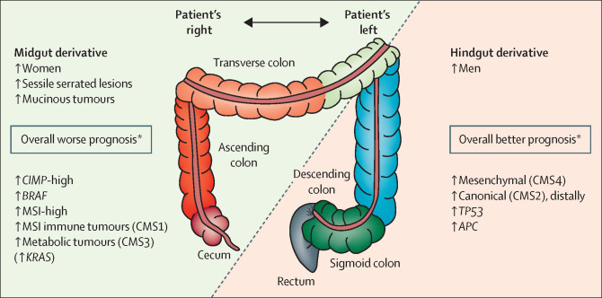 rectosigmoid cancer prognosis