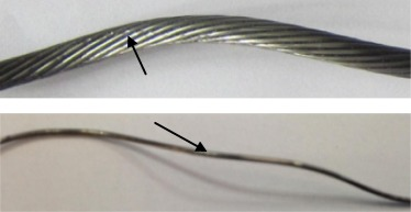 Effect of broken wire on bending fatigue characteristics of wire ...