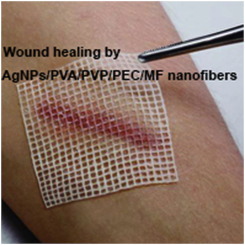 Skin wound healing acceleration by Ag nanoparticles embedded