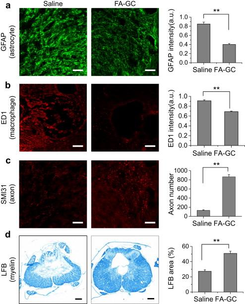 Neuroprotective ferulic acid (FA)–glycol chitosan (GC) nanoparticles