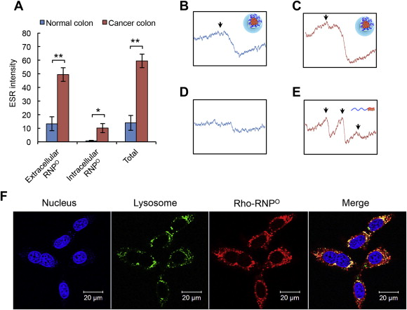 Development Of An Oral Nanotherapeutics Using Redox Nanoparticles For Treatment Of Colitis Associated Colon Cancer Sciencedirect