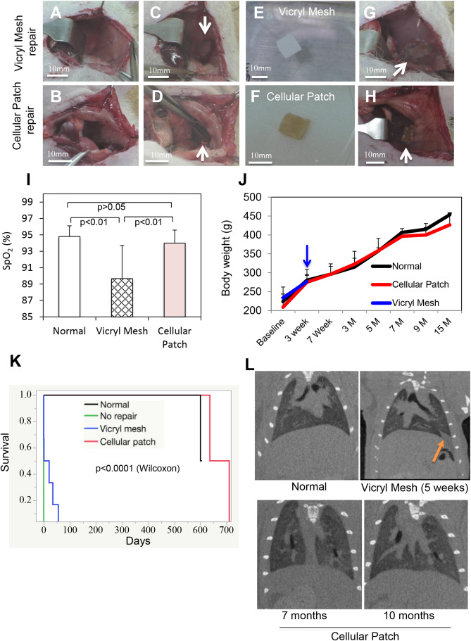 e3ebc308b9fc Regeneration of diaphragm with bio-3D cellular patch - ScienceDirect